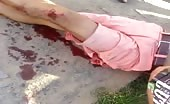 Motorcyclist suffering from injury sustained in accident 8