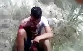 After effects of machete fight 8