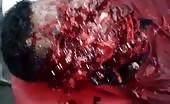 Man's face disfigured with machete 5