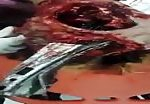 Lady impaled with big metal scrap through her head 2