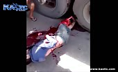 Skinned and the bone exposed after being hit by a truck 14