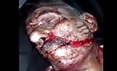 Killed in missile strike 15