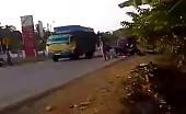 Brain lost - motorbike accident 15
