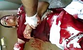 Brutally wounded boy gasping 7