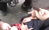 Civilian shot in the head by police 9
