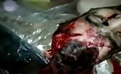 Corpse with head blasted 16