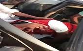 Terrible car accident man head half open