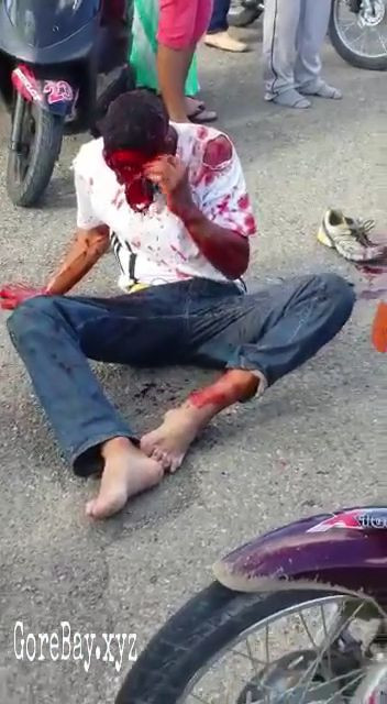Guy's face peeled off after a crash