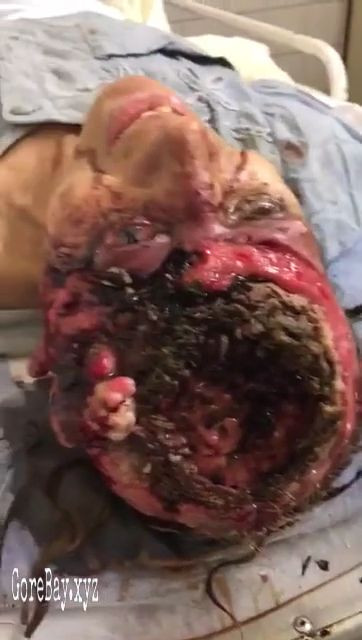 Woman's brain eaten by maggots while she suffer 11