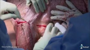Testicle tumor removal surgery