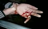 Injured hand with broken finger! 12