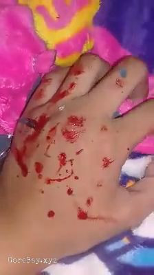 Girl tortures herself by injuring her hand with pieces of broken mirror