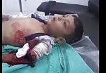 Boy injured in bombardment 2