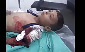 Boy injured in bombardment