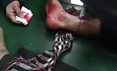 Bullet shot in the leg 8