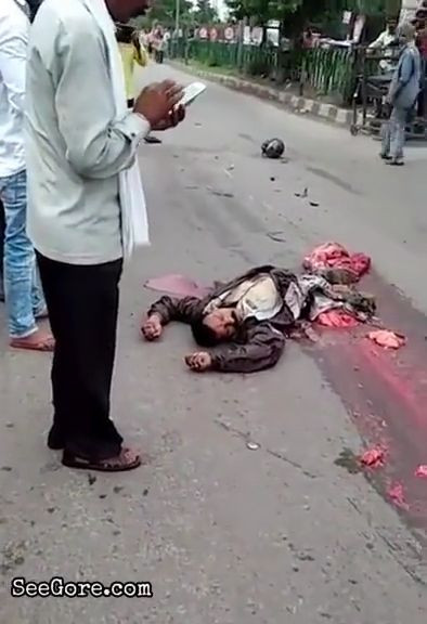 Man gets his lower body part destroyed in an accident 11
