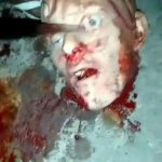 Removing eye from a decapitated head, ended up bursting it 2