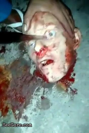 Removing eye from a decapitated head, ended up bursting it 8