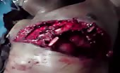 Visible man heart beating through severed chest 6