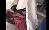Brutally killed in bombing – 27 13
