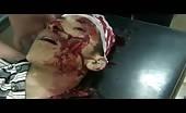 Injured in bombing – 5 16