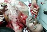 Injury caused by bombing 3
