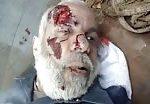 Old man dead in bombing 2