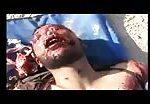Victim of indiscriminate shelling 2