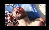 Victim of indiscriminate shelling