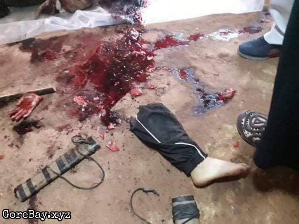 Pregnant wife dismembered 7