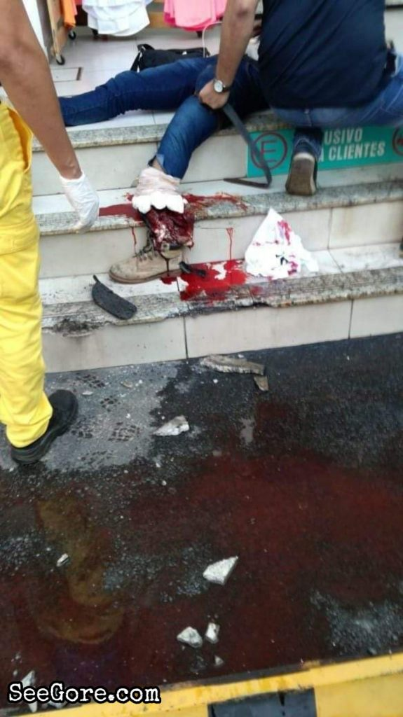 Man's foot was cut off by a car drove by his friend 4