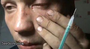 Man with Schizophrenia destroys his eye