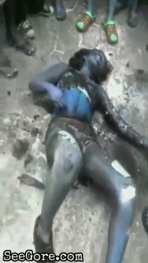 Burned woman still alive