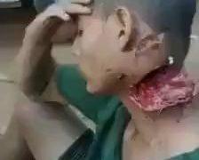 Torn off neck 28