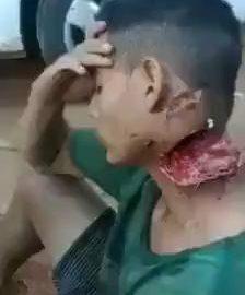 Torn off neck 6