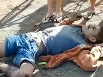 Man got his leg cut off 9