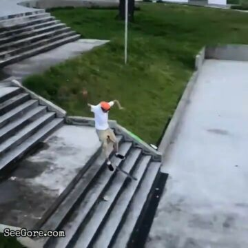 Skater snaps his ankle 5