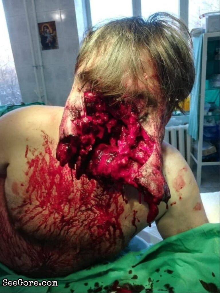 Man with Predator-like face survives a suicide attempt 5
